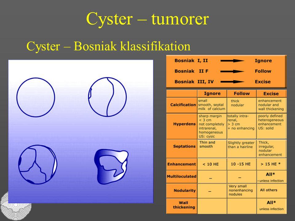 Cyster – tumorer Cyster – Bosniak klassifikation