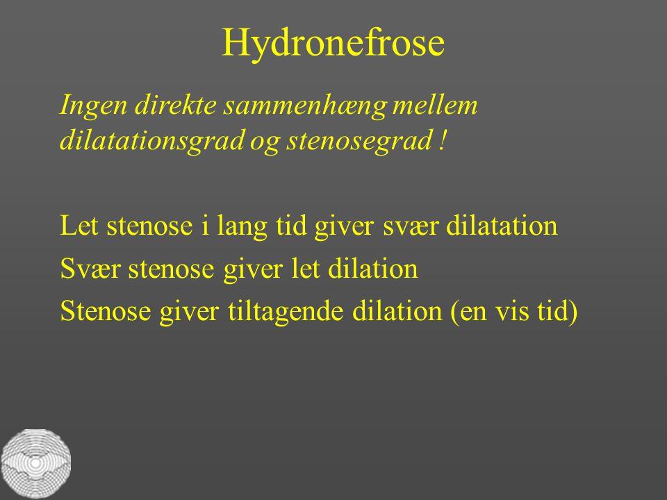 Hydronefrose Ingen direkte sammenhæng mellem dilatationsgrad og stenosegrad ! Let stenose i lang tid giver svær dilatation.