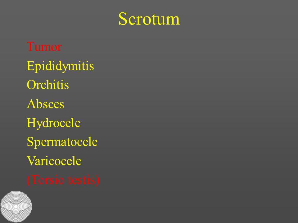 Scrotum Tumor Epididymitis Orchitis Absces Hydrocele Spermatocele