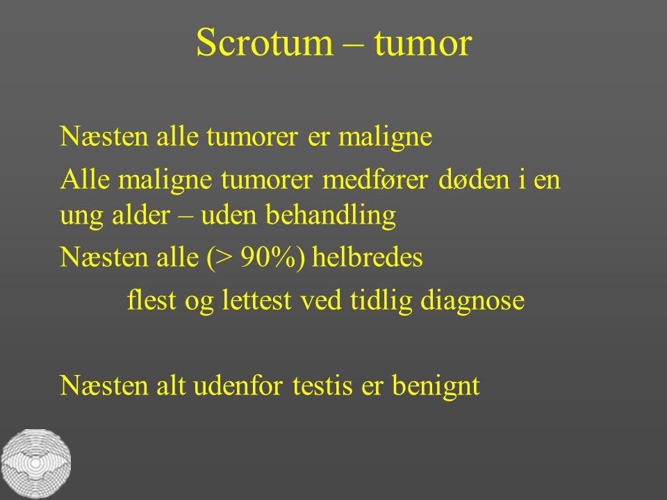 Scrotum – tumor Næsten alle tumorer er maligne