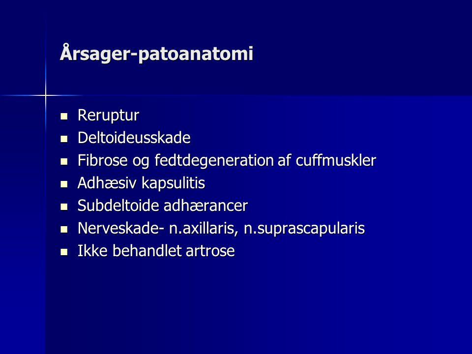 Årsager-patoanatomi Reruptur Deltoideusskade