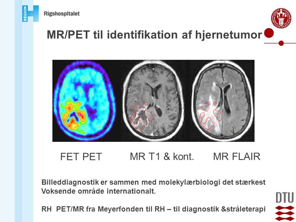 MR/PET til identifikation af hjernetumor