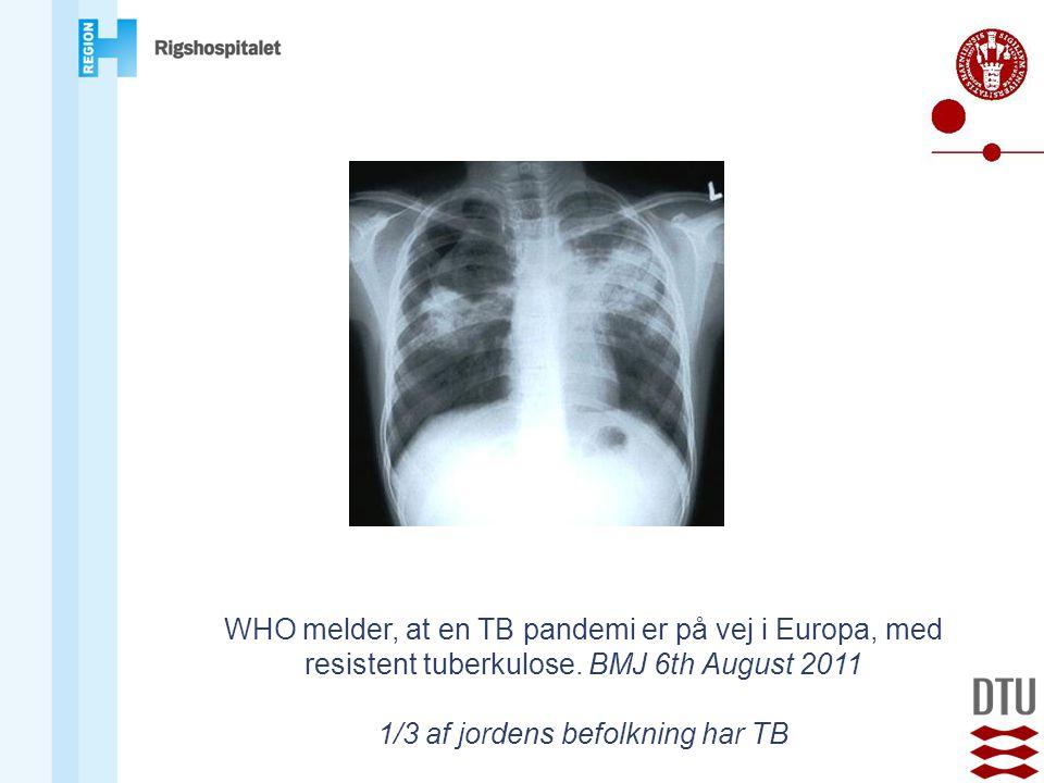 1/3 af jordens befolkning har TB