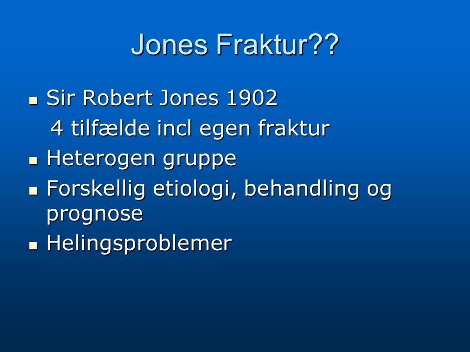 Jones Fraktur Sir Robert Jones 1902 4 tilfælde incl egen fraktur