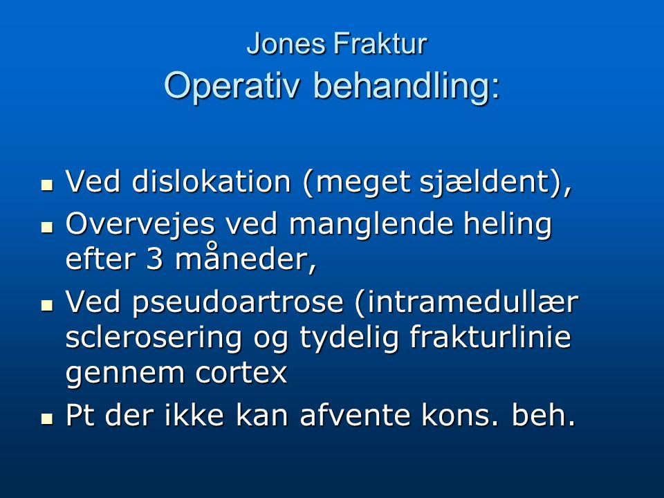 Jones Fraktur Operativ behandling:
