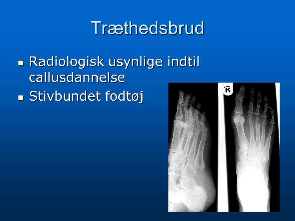 Træthedsbrud Radiologisk usynlige indtil callusdannelse