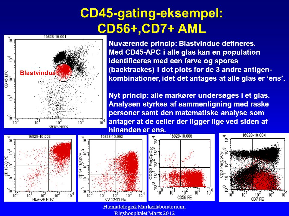 CD45-gating-eksempel: CD56+,CD7+ AML
