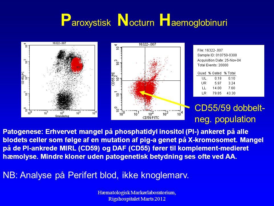 Paroxystisk Nocturn Haemoglobinuri
