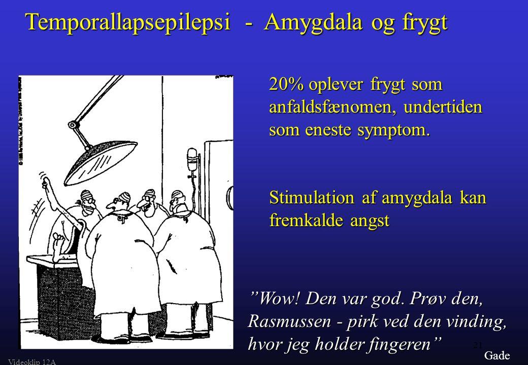 Temporallapsepilepsi - Amygdala og frygt