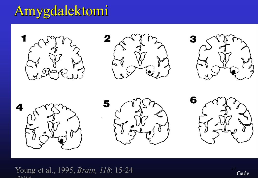 Amygdalektomi Young et al., 1995, Brain, 118: 15-24 #2650d Gade