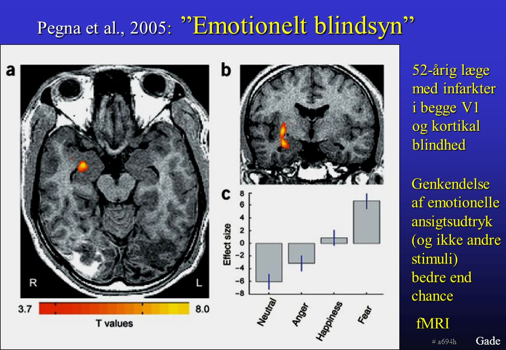 Pegna et al., 2005: Emotionelt blindsyn
