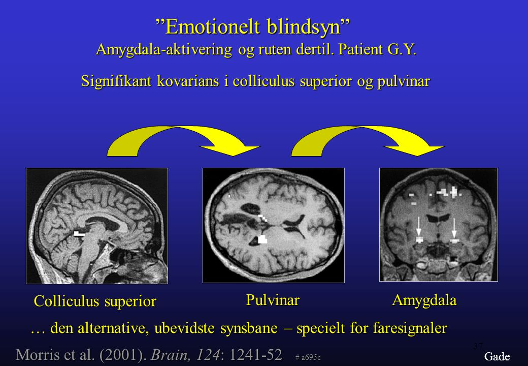Emotionelt blindsyn Amygdala-aktivering og ruten dertil. Patient G.Y.
