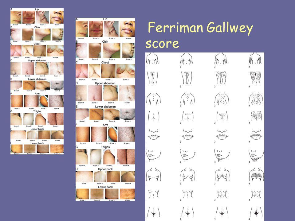 Ferriman Gallwey score