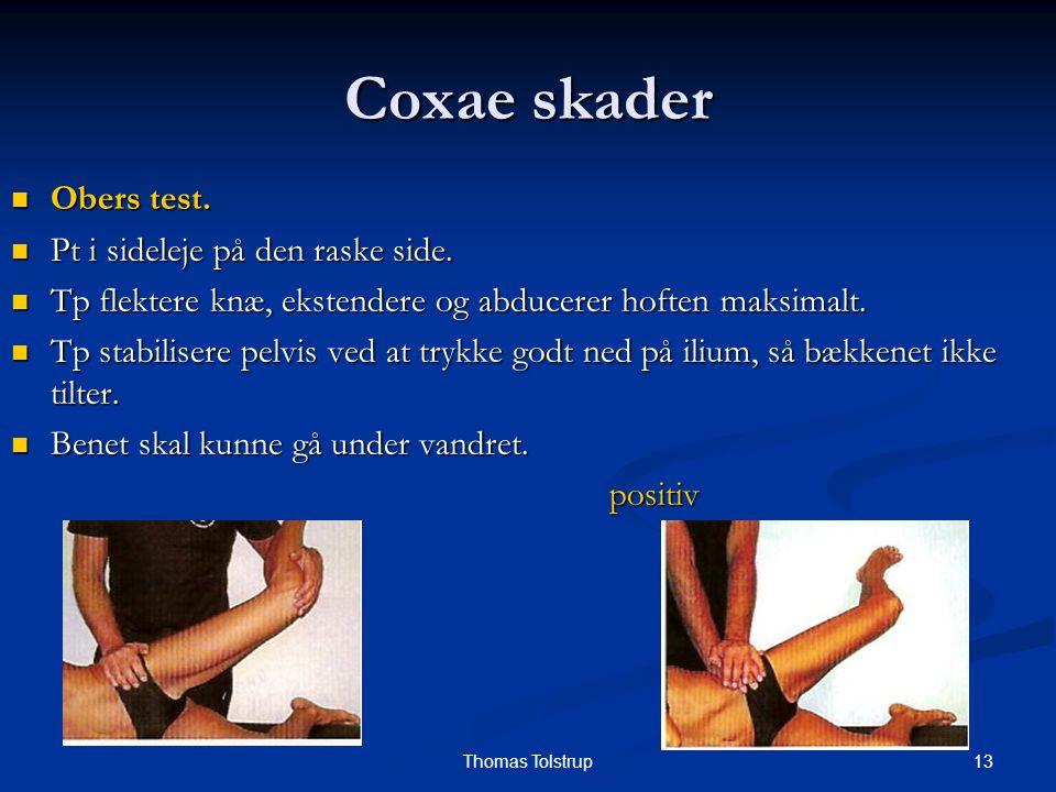 Coxae skader Obers test. Pt i sideleje på den raske side.