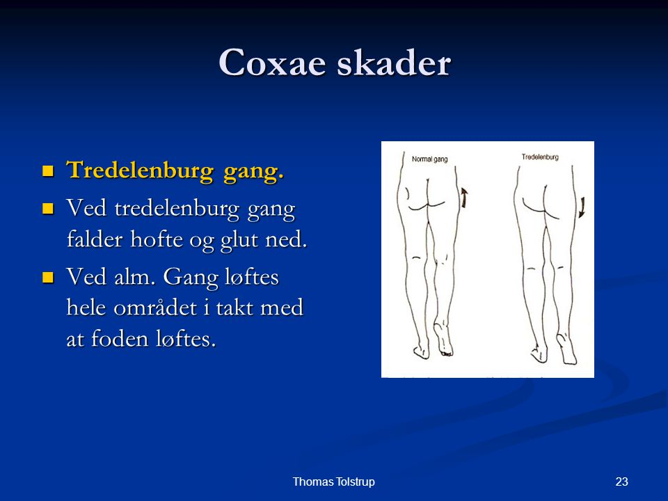 Coxae skader Tredelenburg gang.