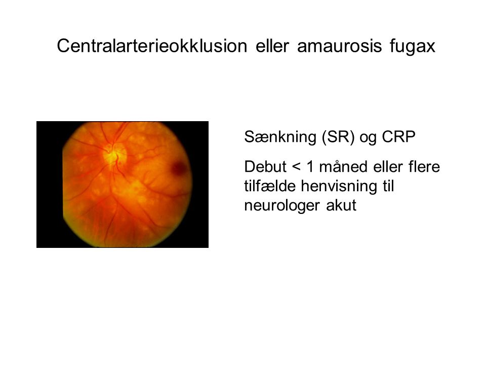 Centralarterieokklusion eller amaurosis fugax