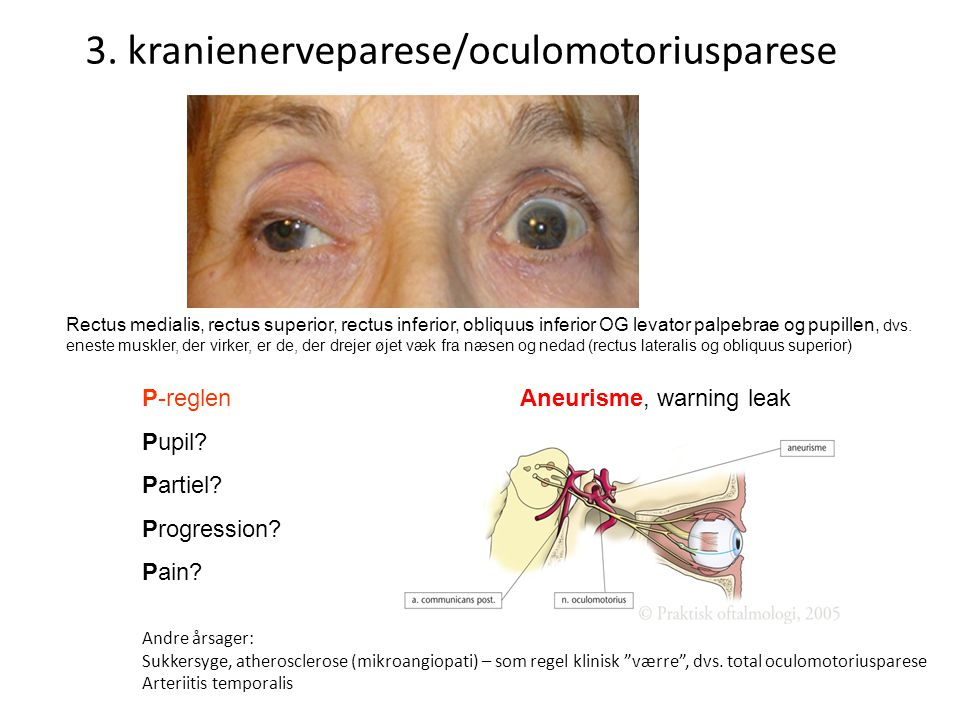 3. kranienerveparese/oculomotoriusparese