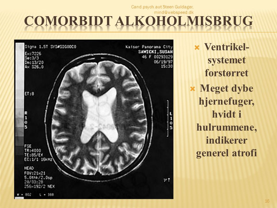 Comorbidt alkoholmisbrug