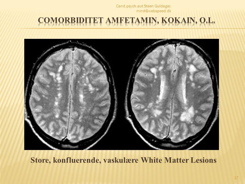 Comorbiditet amfetamin, kokain, o.l.