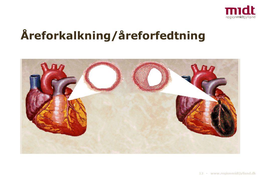 Åreforkalkning/åreforfedtning