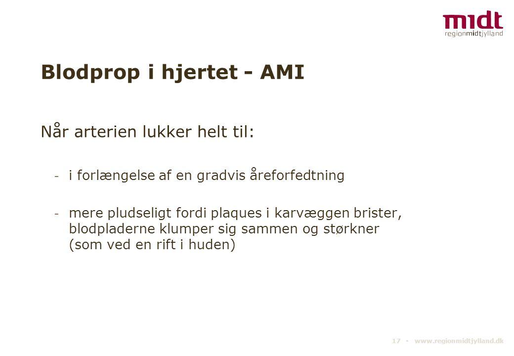 Blodprop i hjertet - AMI
