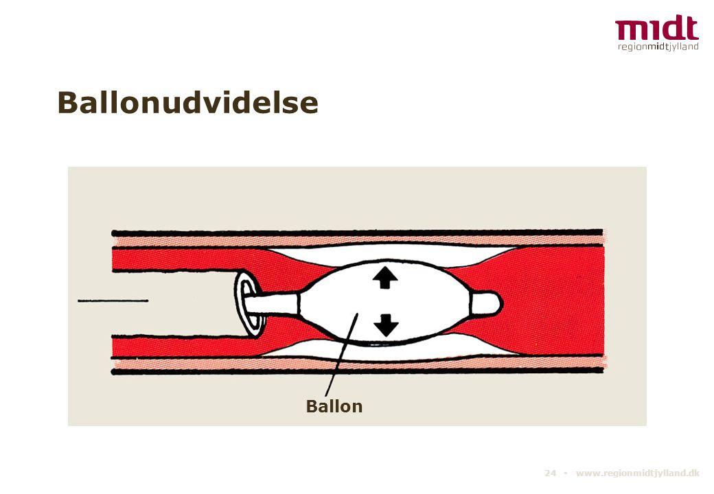 Ballonudvidelse Ballon 24 ▪ www.regionmidtjylland.dk