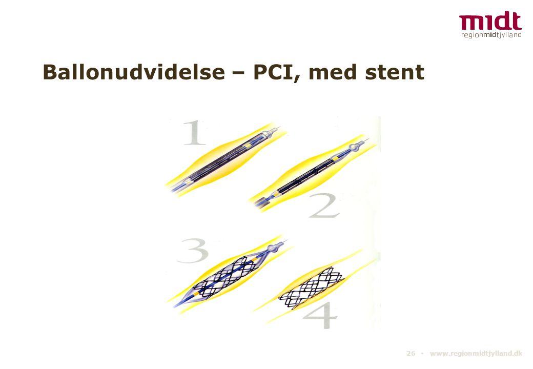Ballonudvidelse – PCI, med stent