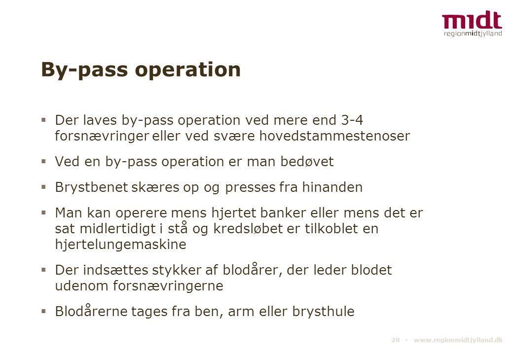 By-pass operation Der laves by-pass operation ved mere end 3-4 forsnævringer eller ved svære hovedstammestenoser.