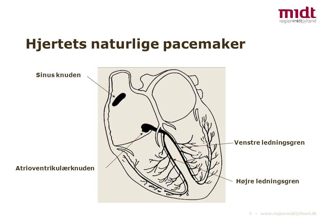 Hjertets naturlige pacemaker
