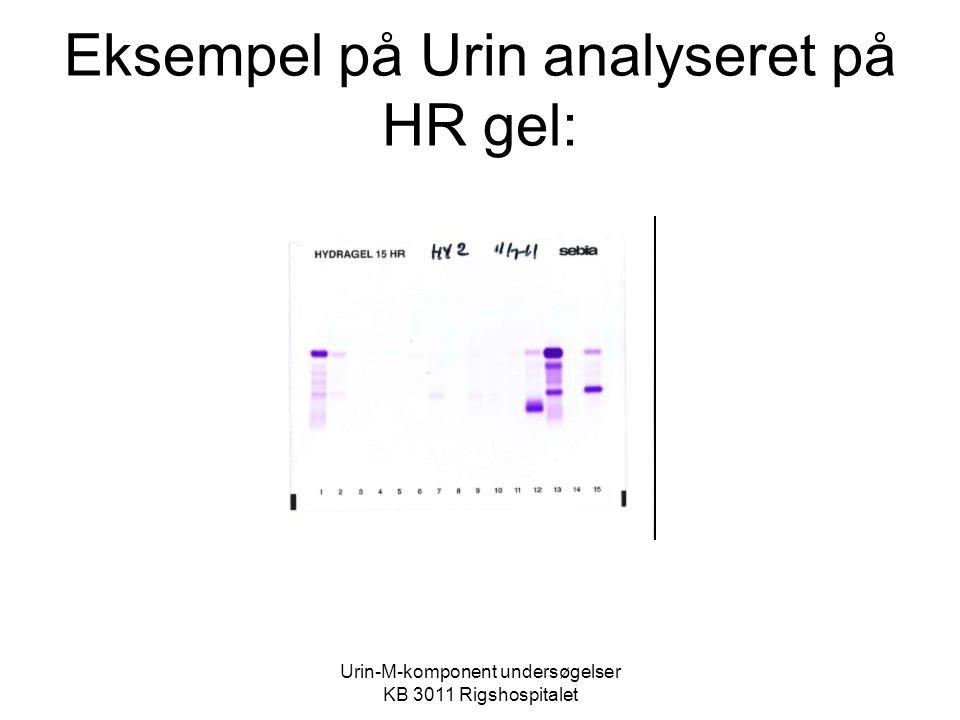 Eksempel på Urin analyseret på HR gel:
