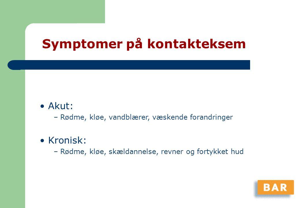 Symptomer på kontakteksem
