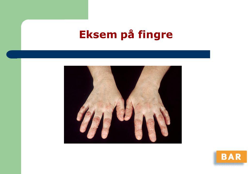 Eksem på fingre