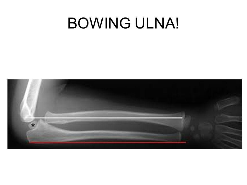BOWING ULNA!