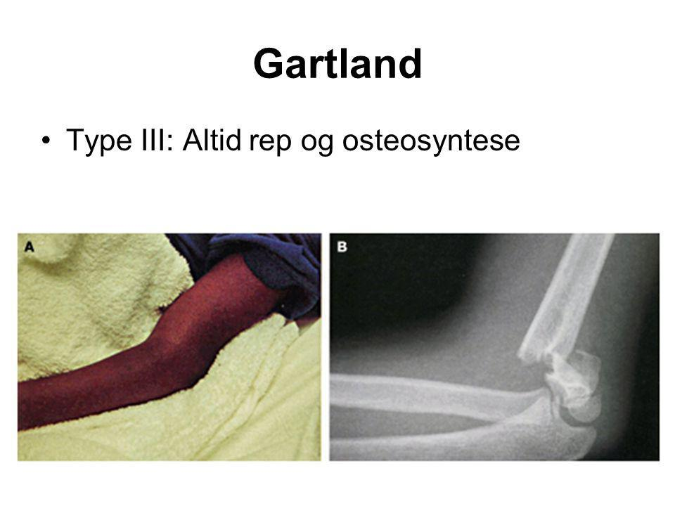 Gartland Type III: Altid rep og osteosyntese