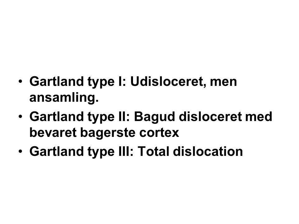 Gartland type I: Udisloceret, men ansamling.