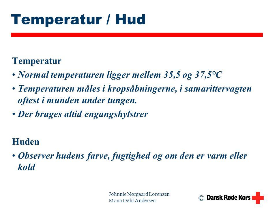 Temperatur / Hud Temperatur