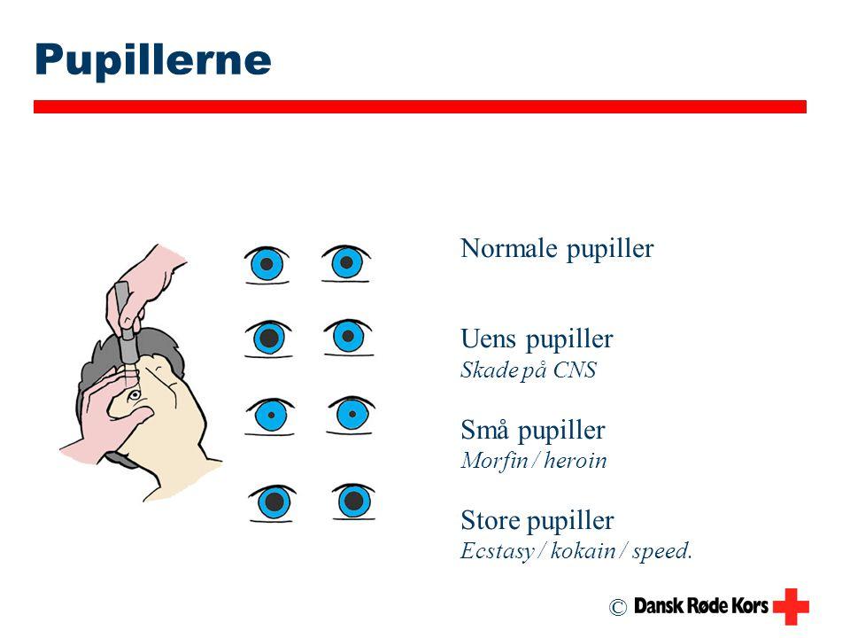 Pupillerne Normale pupiller Uens pupiller Små pupiller Store pupiller