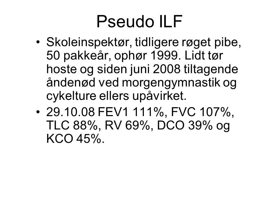 Pseudo ILF