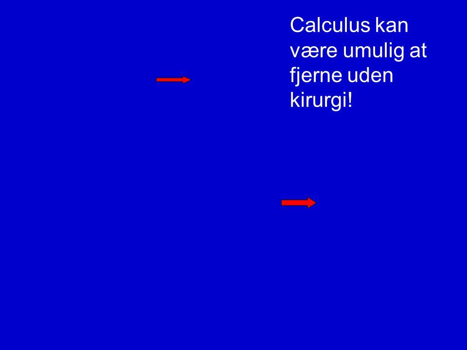 Calculus kan være umulig at fjerne uden kirurgi!