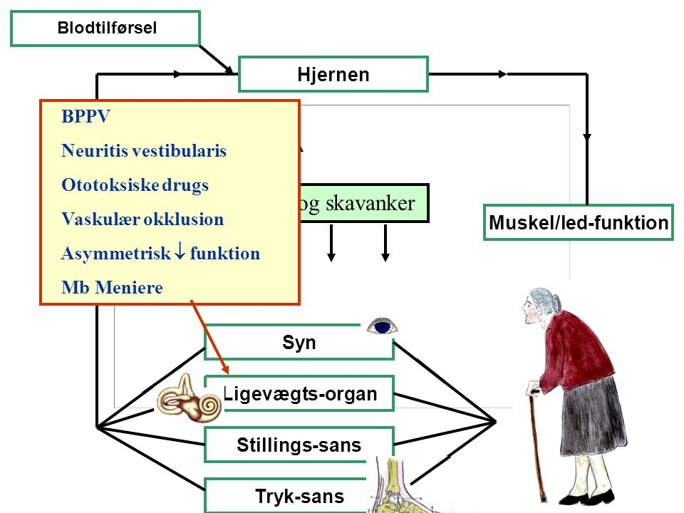 Sygdomme og skavanker Hjernen BPPV Neuritis vestibularis