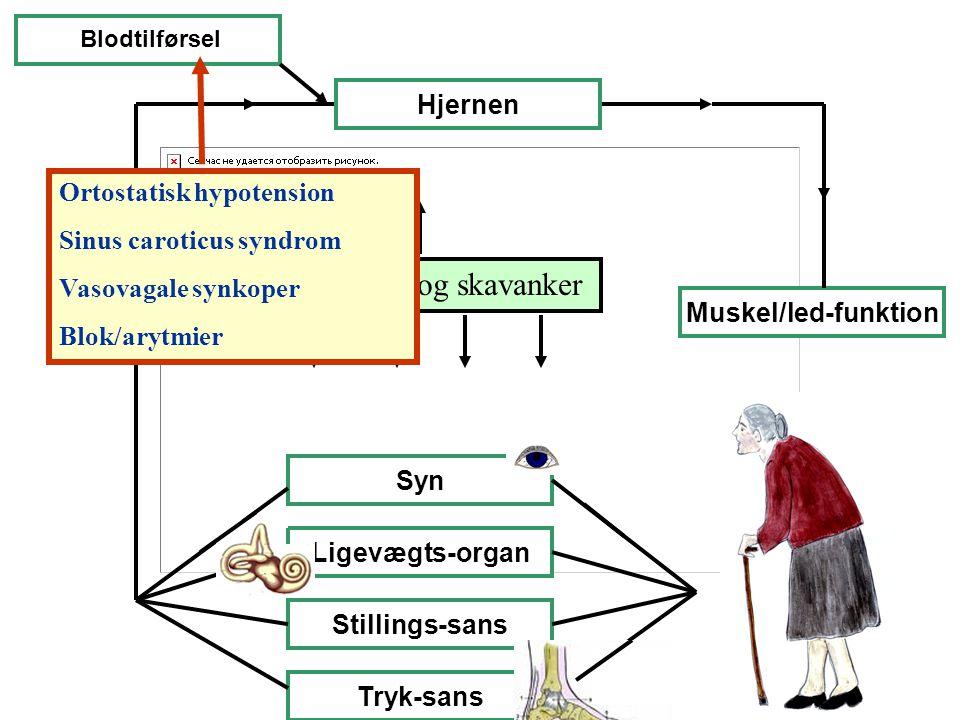 Sygdomme og skavanker Hjernen Ortostatisk hypotension