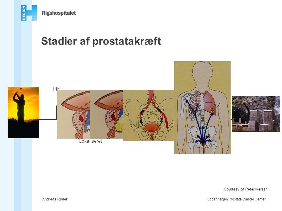 Stadier af prostatakræft