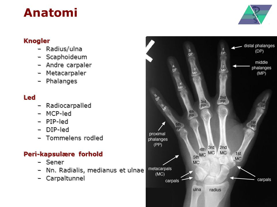Anatomi Knogler Radius/ulna Scaphoideum Andre carpaler Metacarpaler