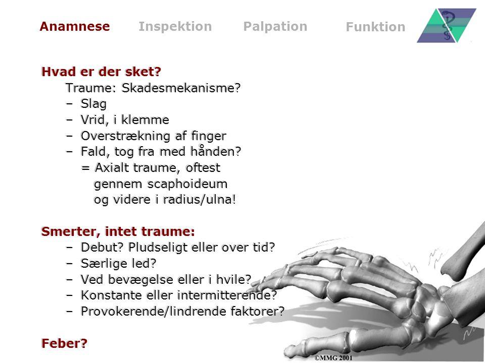 Traume: Skadesmekanisme Slag Vrid, i klemme Overstrækning af finger
