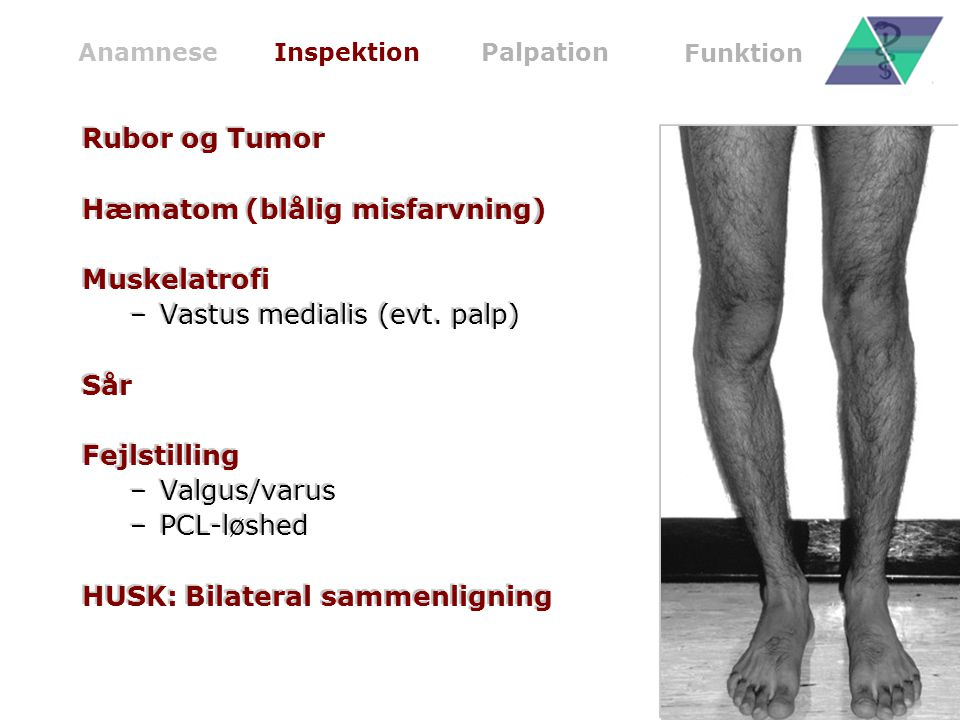 Hæmatom (blålig misfarvning) Muskelatrofi Vastus medialis (evt. palp)