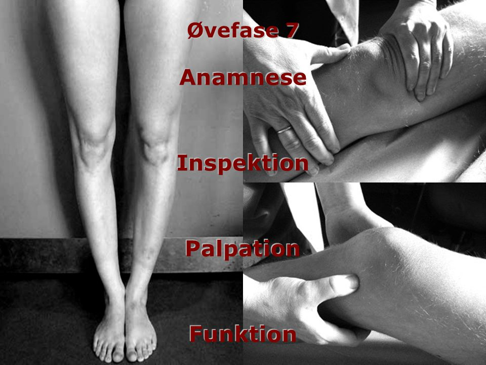 Anamnese Inspektion Palpation Funktion