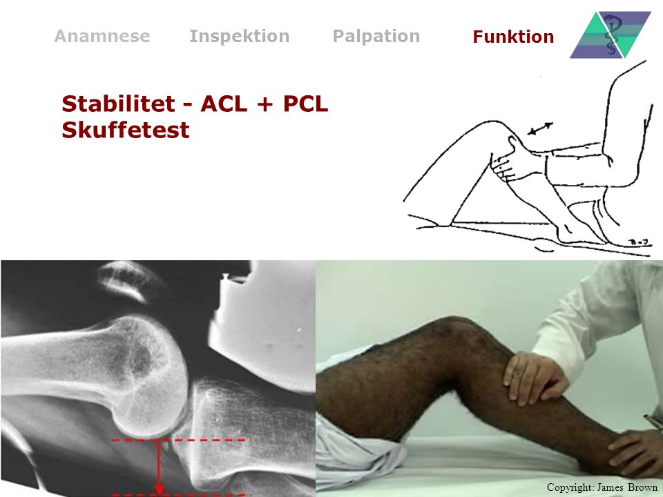 Stabilitet - ACL + PCL Skuffetest