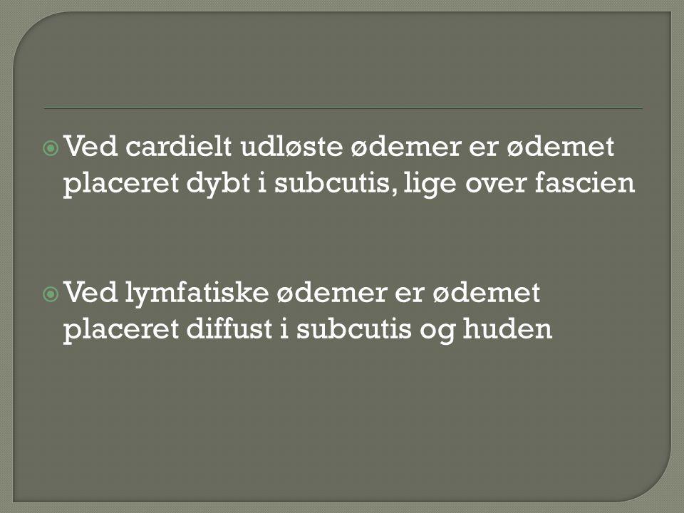 Ved cardielt udløste ødemer er ødemet placeret dybt i subcutis, lige over fascien