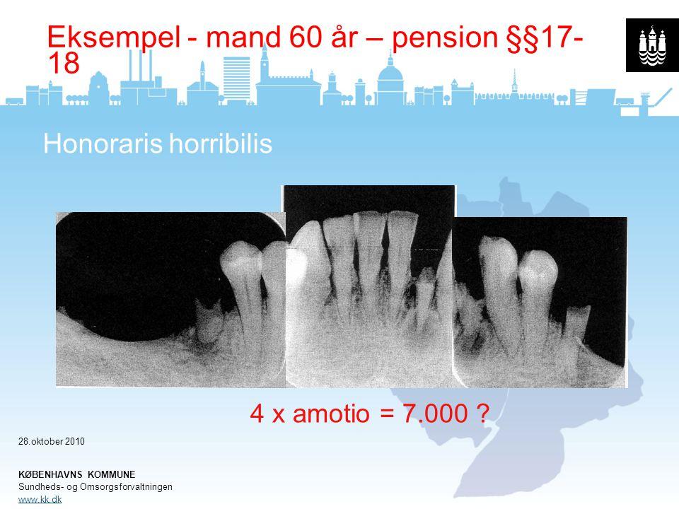 Eksempel - mand 60 år – pension §§17-18