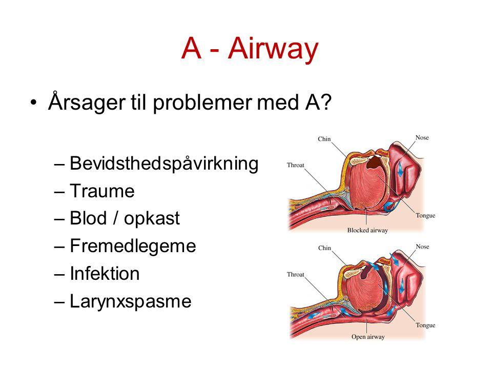 A - Airway Årsager til problemer med A Bevidsthedspåvirkning Traume
